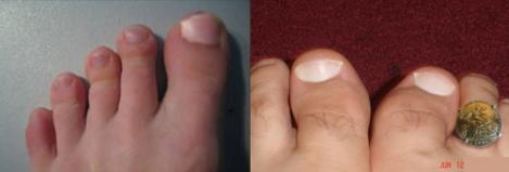 toenail joy